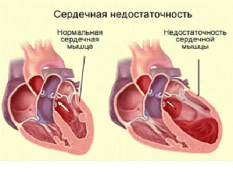 Хроническая сердечная недостаточность классификация по стражеско -