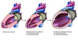 Классификация сердечной недостаточности по василенко