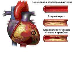 Коронарная артерия